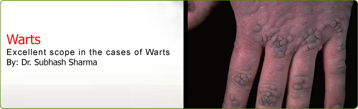 Homeopathic Treatment For Warts Homeopathy For Warts